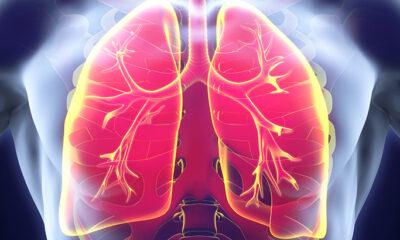 Koji su simptomi tuberkuloze?