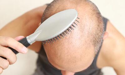 Kako spriječiti ispadanje kose?