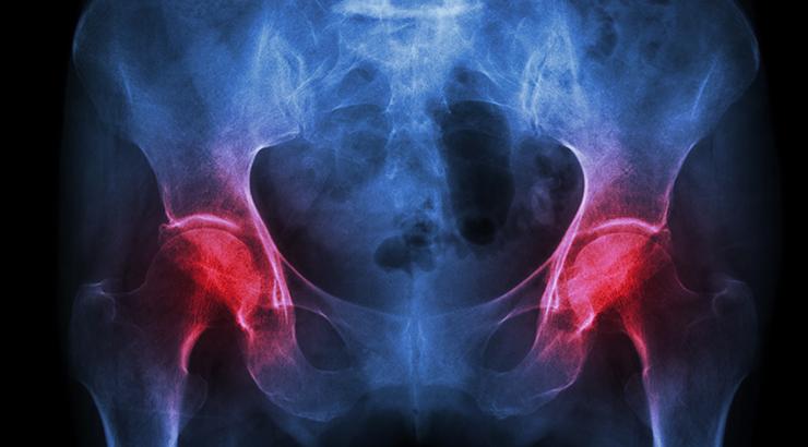 Kako zaustaviti osteoporozu?